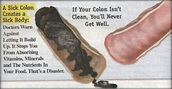 You Have About 30 Pounds Of Poison In Your Colon! Here is Your Solution