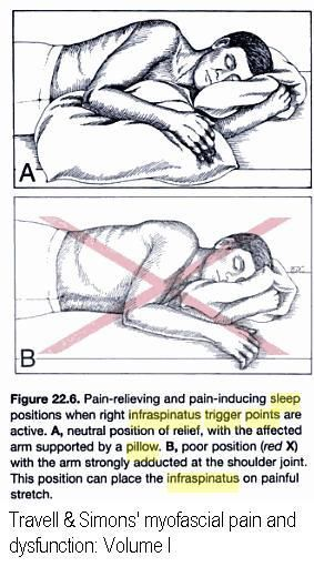 Ohhh this is so me!   I must change this! Shoulder Pain at Night – What Can You Do? | Pain Medical Musing