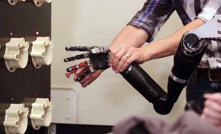 Excelentes noticias en el mundo de las prótesis: un brazo robótico que permite que el paciente pueda volver a sentir los dedos, después de haber perdido la