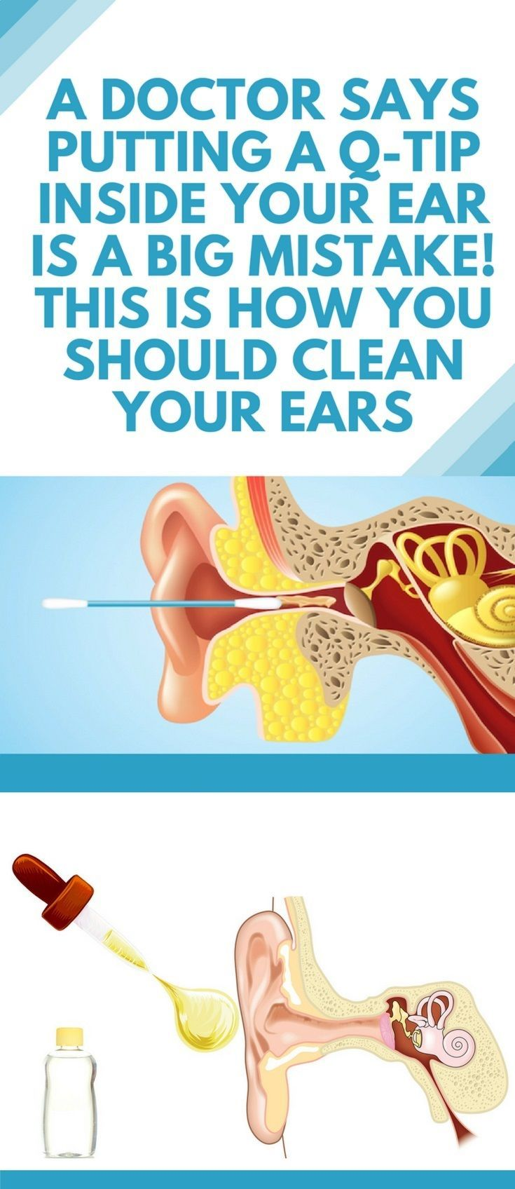 A doctor says putting a qtip inside your ear is a big