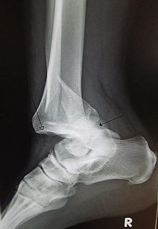 Dislocated ankle