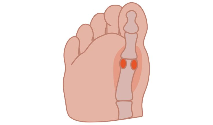 Irritation, imbalance, or fracture of two small bones—sesamoids—near the big toe is a forefoot problem that may cause pain in some individuals. These two sesamoid bones, located on the underside of the foot, directly below the first metatarsal bone—the long, thin bone that's positioned between the ankle bones and the big toe—are approximately the size of corn kernels and act like pulleys...