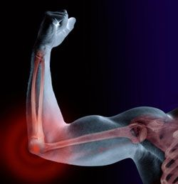 Man with elbow pain flexing bicep