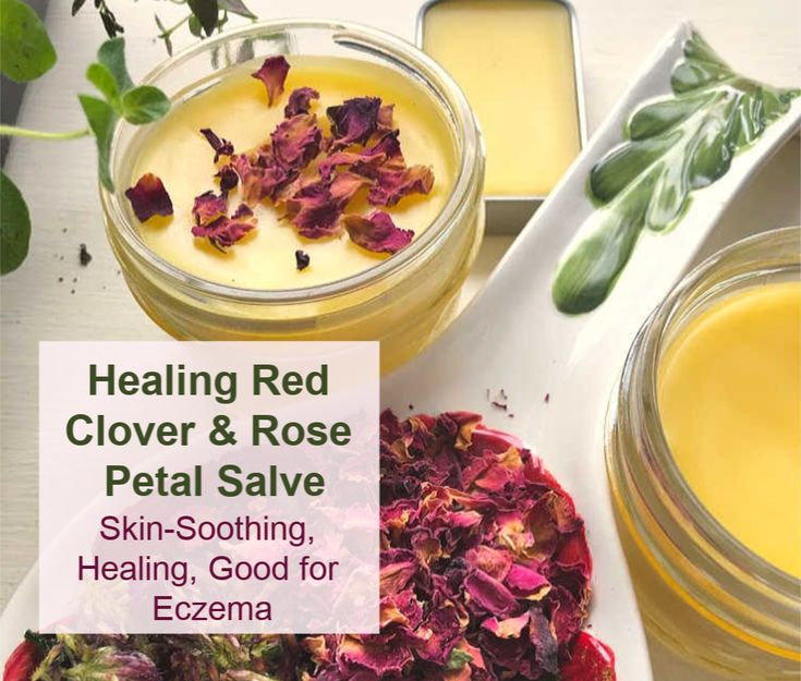 Feb 11 How to Make Red Clover & Rose Petal Skin Care Salve (Great Recipe for Soothing Eczema)