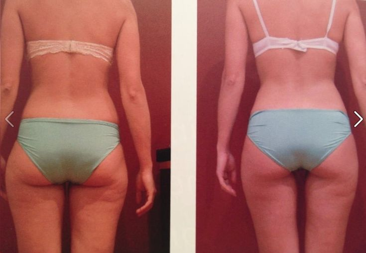 Before and after; total loss 28.9 cms, after having 16 treatments on HYPOXI L250 cycle (age:32)