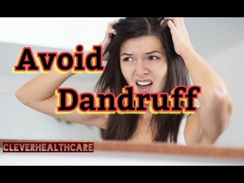 Avoid Dandruff in Naturally, Best Home remedy -  CLICK HERE for The No. 1 Itchy Scalp, Dandruff, Dry Flaky Sore Scalp, Scalp Psoriasis Book! #dandruff #scalp #psoriasis Now #CleverHealthCare Showing How to Avoid Dandruff in Naturally …  More updates Subscribe our Channel  We Expecting your valuable Suggestions in Comment... - #Dandruff