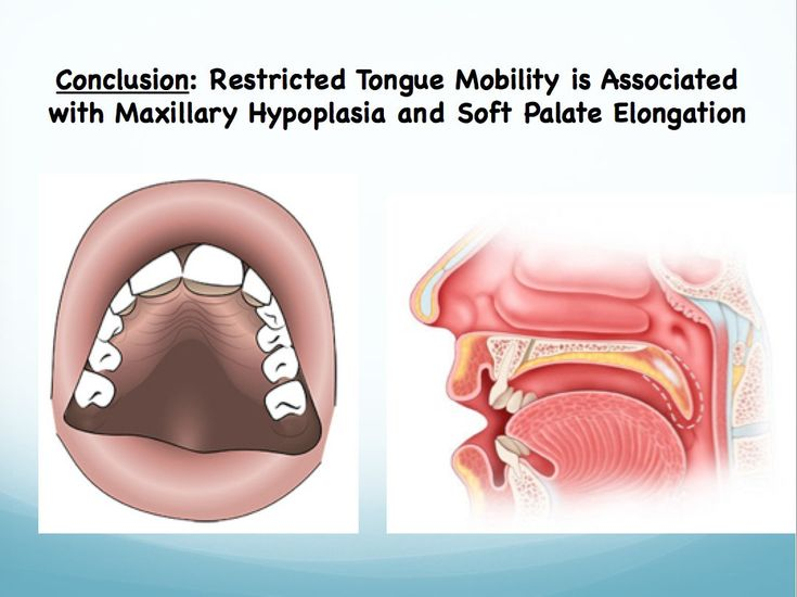 Soroush Zaghi, MD- Highly Specialized Snoring and Sleep Apnea Surgeon | Tongue-Tie (Functional Ankyloglossia)