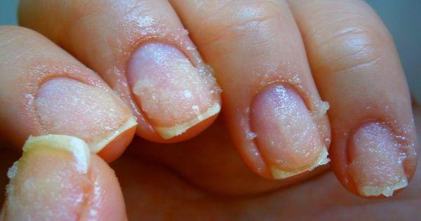 В своем стремлении быть красивыми мы, женщины, прибегаем к различным ухищрениям. Окрашенные лаком ногти — не исключение. Для собственного удовольствия или для того, чтобы привлечь внимание, мы наращиваем ногти и используем гель-лаки, продлевая таким образом красоту рук.   © DepositPhotos  К сож
