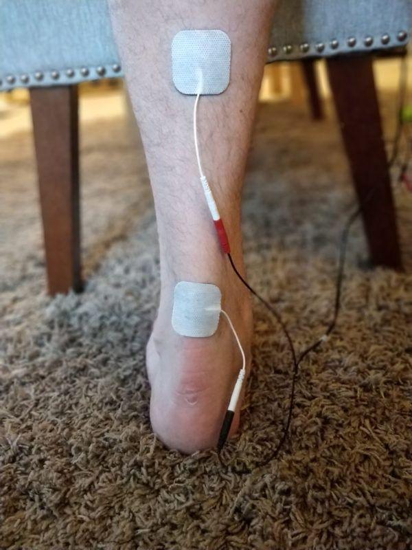 Tens Unit Placement For Achilles Tendonitis Achilles Tendonitis