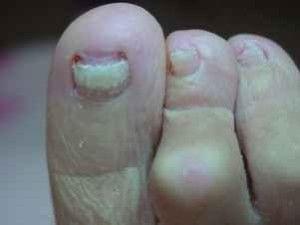 Грибок на ногтях ног, лечение для пожилых 2
