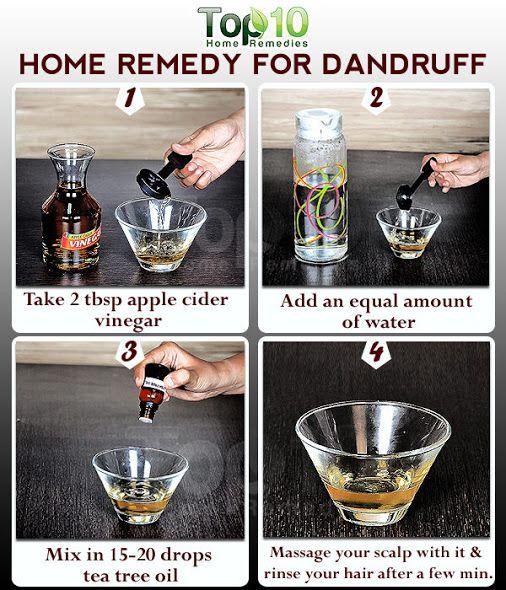 Home remedy for dandruff