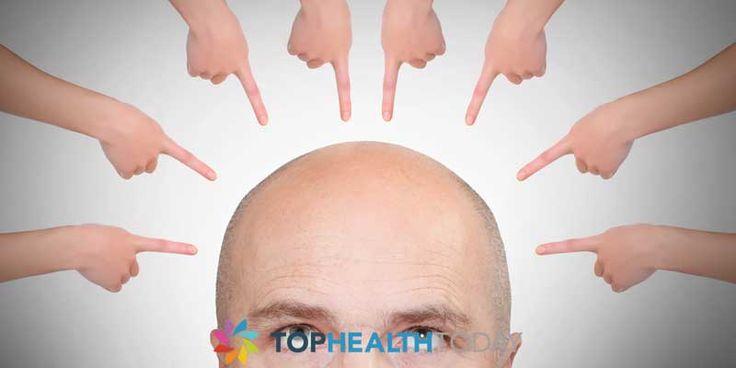 Male pattern Baldness 101