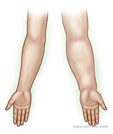 Lymphedema basics (What is lymphedema - Vascular Web)