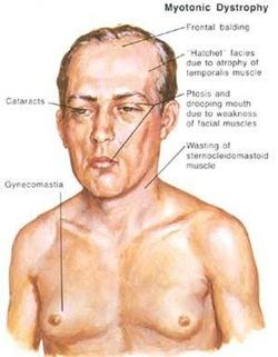 learn the basic pathology of myotonic dystrophy http://www.medicalzone.net/pathology-definition---myotonic-dystrophy.html