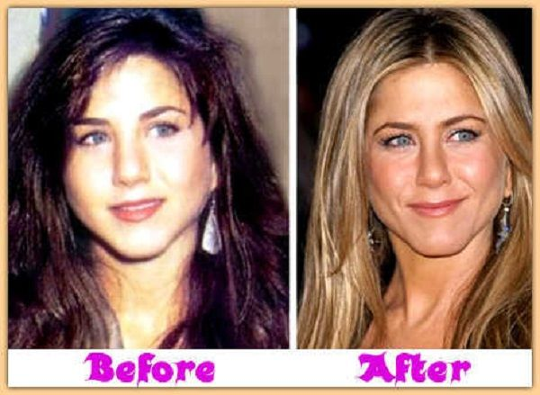 jennifer aniston plastic surgery before after jennifer aniston plastic surgery before after