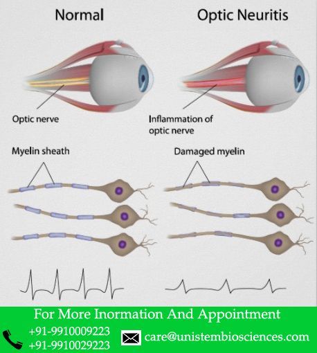 Stem Cell Treatment For Optic Neuritis (Optic Nerve Inflammation).