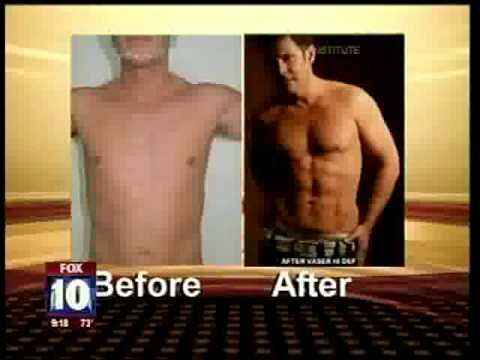 Vaser HI Definition Liposuction by Dr. Daniel Shapiro on Channel 10 News