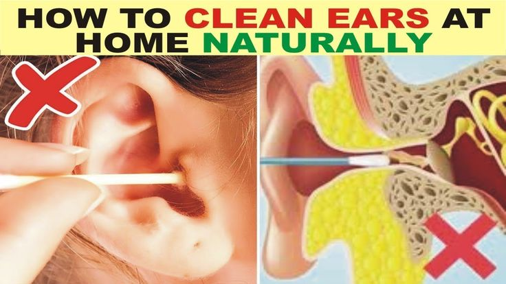 How to clean ears at home naturally in 2020 Ear cleaning