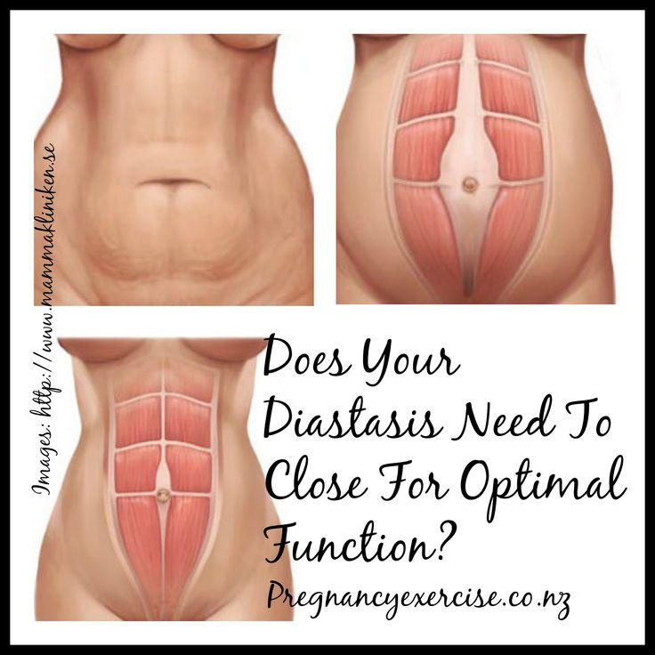 Does Your Diastasis recti Need to Close?