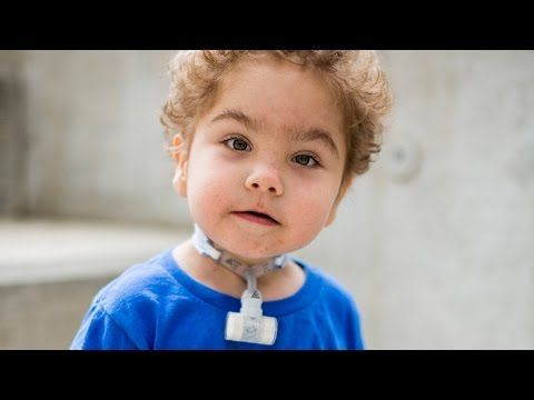 New study shows how babies' lives were saved by 3D printing (with video) | CS Mott Children's Hospital: University of Michigan Health System