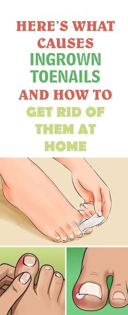 HERE'S WHAT CAUSES INGROWN TOENAILS AND HOW TO GET RID OF THEM AT HOME!