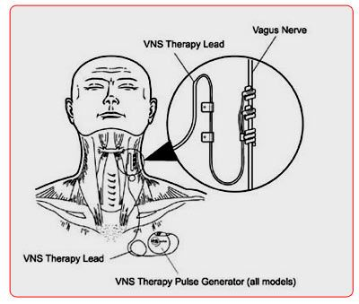 A Device Attached To The System Is Not Functioning Cool 9 Best Vagus Nerve Stimulationvns Images On Pinterest  Epilepsy Inspiration Design