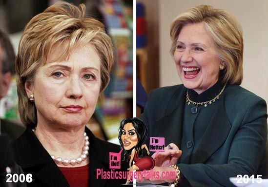 Hillary Clinton Plastic Surgery - Facelift Properly Done - http://plasticsurgerytalks.com/hillary-clinton-plastic-surgery-facelift/