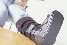 If you have injured your ankle, resulting in a severe sprain or fracture, you may need to wear a cast to keep it immobilized while it heals. Stanford School of Medicine explains that a cast is made of either plaster or fiberglass, which encompasses the injury during the healing process. In the case of an ankle injury, a cast may be worn anywhere...