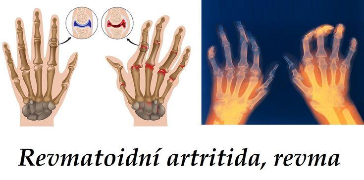 revma revmatismus revmatoidni artritida byliny bylinky babske rady caj obklad tinktura mast koupel