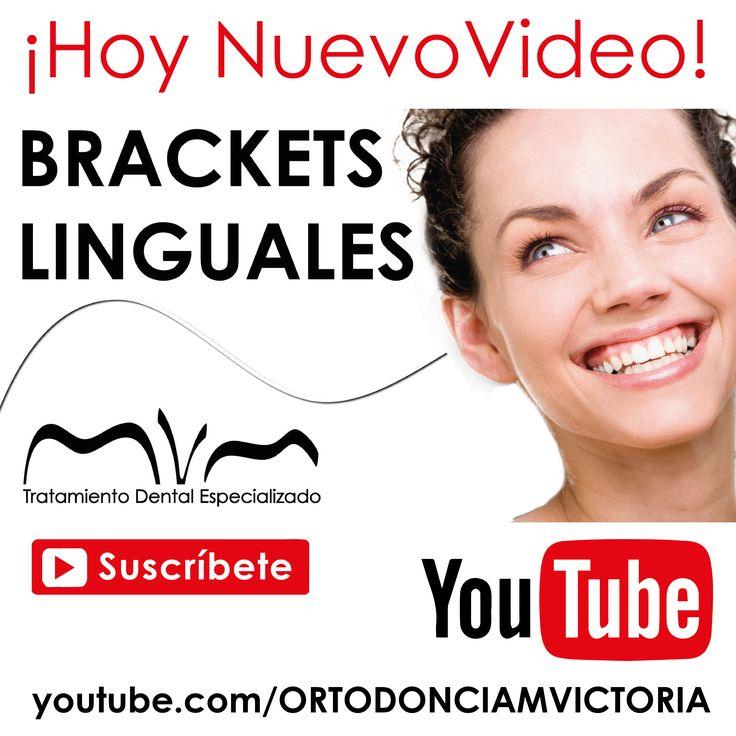 ORTODONCIA LINGUAL: NUEVO VIDEO EN NUESTRO CANAL DE YOUTUBE: ORTODONCIA MVM | https://youtu.be/L6CJkk00x8U ¿Quieres mejorar tu sonrisa sin que nadie lo note? ¿Conoces la ortodoncia lingual? Descúbrelo en este video, donde explicamos las ventajas que brindan los brackets linguales. Consigue una sonrisa perfecta con la mayor comodidad. Consúltanos tus dudas. www.ortodonciamvm.com Consultas: 8053784 - 6363236 Móvil 313 395 99 97 WhatsApp 321 4595296 Bogotá-Colombia