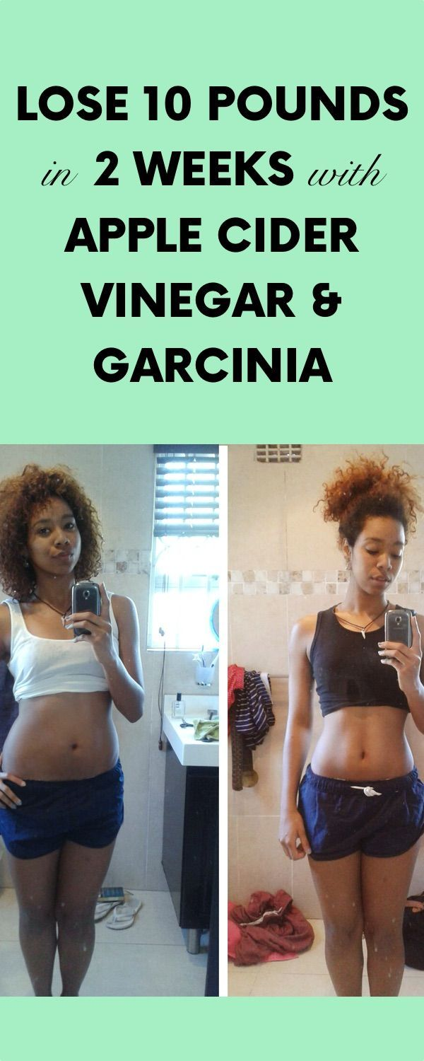 Lose 10 Pounds in 2 Weeks with Apple Cider Vinegar and Garcinia