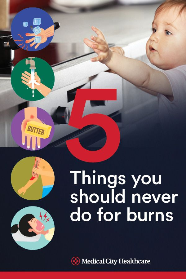 Parents guide to treating and preventing burns in children.
