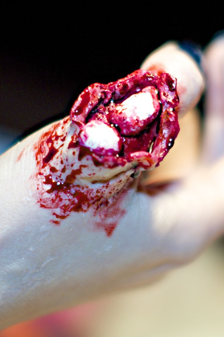 #sfx #spfx #specialfx #specialeffectsmakeup #specialfxmakeup #specialeffects #makeup #halloween #halloweenmakeup #bloody #blood #gore #bennye #phalanxes #thumb #scarwax #bones Before I stared this makeup, I prepared the two parts of the phalanxes with Ben Nye bone simulation wax. I applied Ben Nye nose & scar wax on my thumb and I painted the fake wound with cream colors. Then I placed the phalanxes and added blood :) Afterglowsfx83