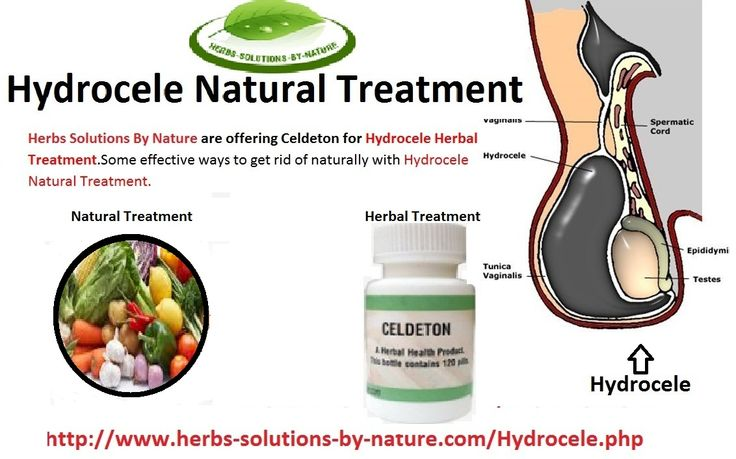 34 Best Hydrocele Treatment Images On Pinterest | Natural ...