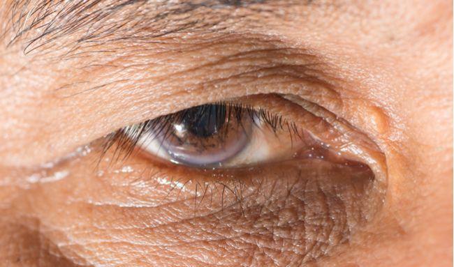 FOTO: Cholesterol sa ukladá aj okolo očí. Viete, ako sa ho zbavíte?