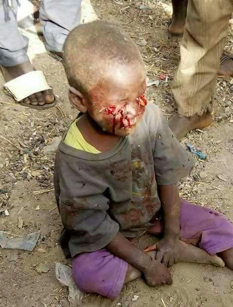 Gerçek teröristler Hıristiyanlar Orta Afrika Müslüman çocukların gözlerini şiş batırarak dökuyorlar