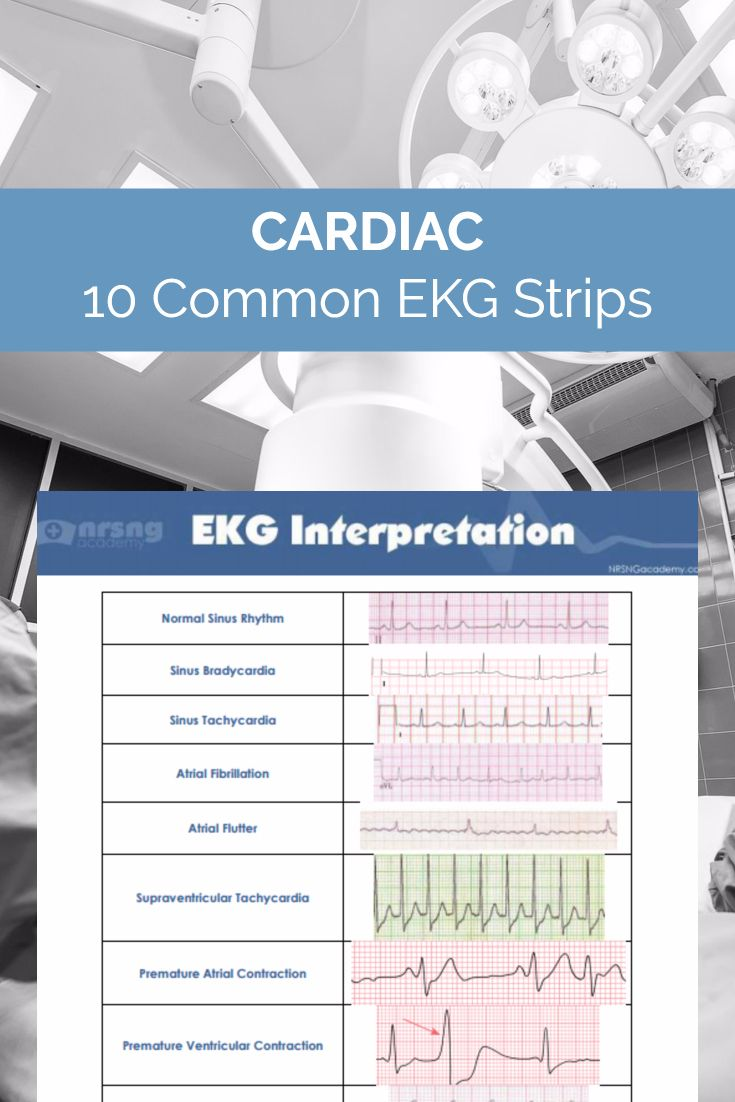 Is this Patient in Sinus Bradycardia or Sinus Tachycardia?…  Most Nurses Have to Interpret EKG Rhythms Every Day. Our FREE Cheat Sheet Will Make Recognizing the Difference Second Nature