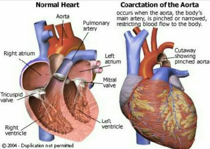 25+ best ideas about Coarctation of the aorta on Pinterest ...