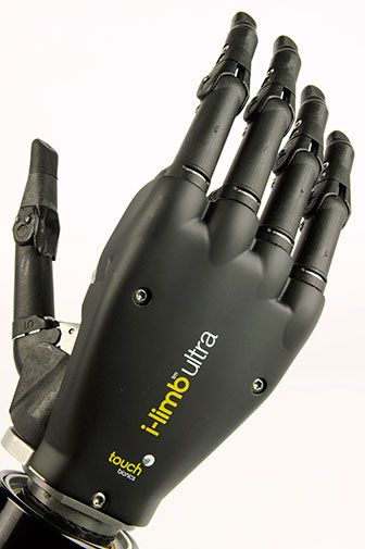 i-limb ultra arm prosthesis innovative products from Touch Bionics | Repinned by @michaelgleiber