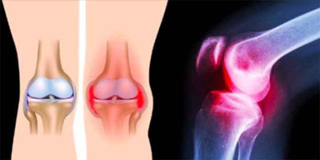 oefeningen die knie pijn herstelt