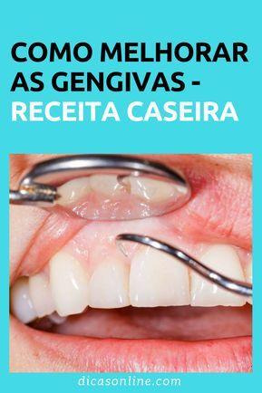 Veja Como Eliminar Tartaro Gengivite E Clarear Os Dentes Sem Gastar
