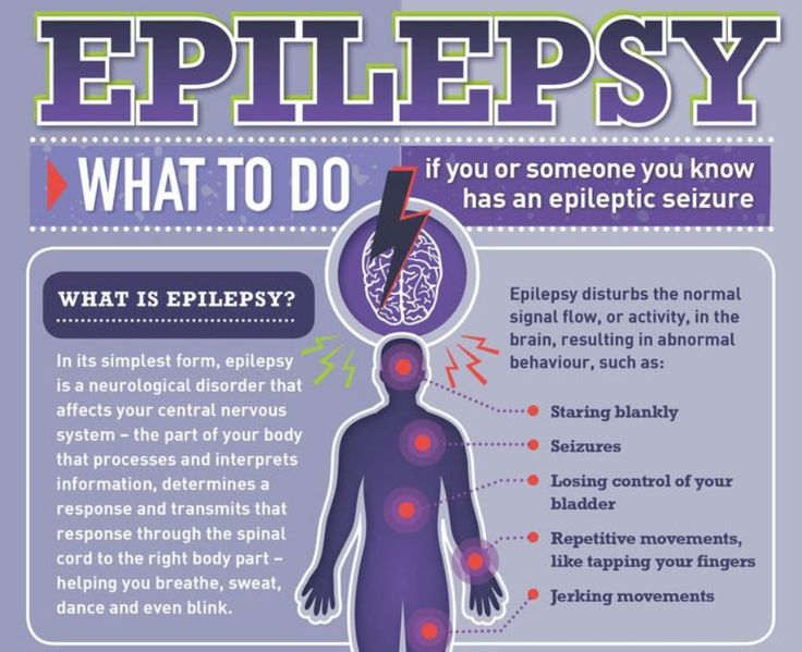 simplest form nervous system What to do if you or someone you know has an epileptic seizure