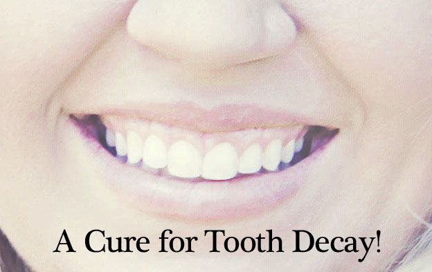 Cure Tooth Decay Book Review- Heal Cavities Naturally