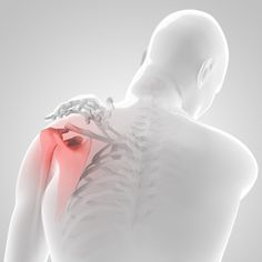 Reverse Total Shoulder Replacement: Recovery, Limitations, and Expectations