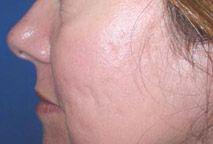 Laserbehandeling bij acne littekens : voor en na