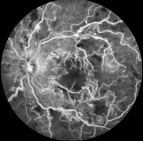 Retinal photography, the inside of the eye. How do these microscopic etchings bare resemblance to incredible cosmic bodies?