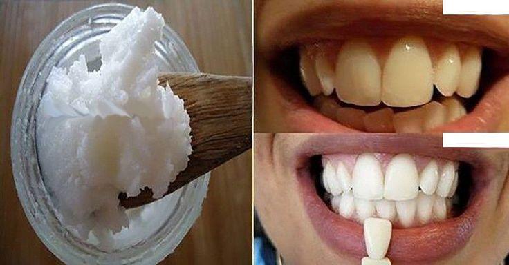 K dosažení zdravých a bílých zubů, odstranění špatného dechu a potlačení infekcí dásní nepotřebujete zubní pasty. Stačí vám tato věc.