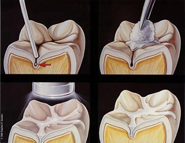 dental sealant [sē′lənt] a plastic film coating that is applied to and adheres to the caries-free chewing surfaces of teeth to seal pits and fissures where plaque ...