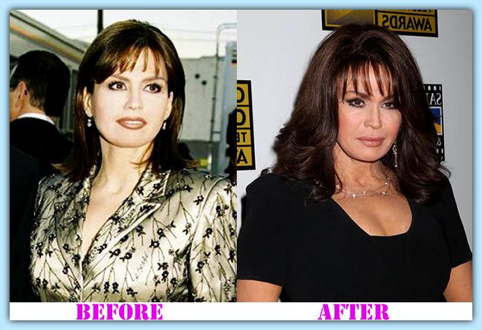 Marie Osmond plastic surgery before and after Marie Osmond plastic surgery #MarieOsmondplasticsurgery #MarieOsmond #psycwellness