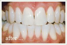 Teeth Whitening, Cosmetic Dentistry #galleria_area #Houston_Texas #cosmetic_dentistry